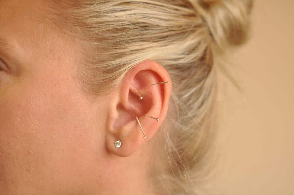 точки на ушах для похудения фото чудесные
